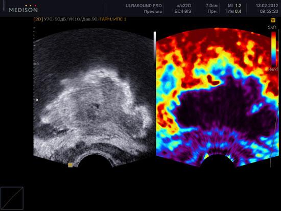 rak-prostaty-ehlastografija-urocenterastana