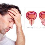 Аденома простаты — медикаментозное лечение