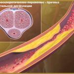 Факторы риска развития эректильной дисфункции (Группы риска)