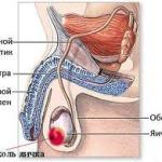 Опухоли яичка