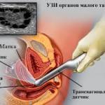 Вагинальное УЗИ (УЗИ органов малого таза)
