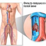 Тромбоз: УЗИ-диагностика тромбоза вен
